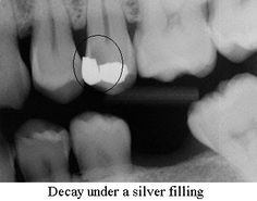 Do you notice the original filling is between the tooth where only the floss can clean and prevent a cavity? A decade later notice how the new decay is in the exact same place, between the teeth. Your dentist can fix a flossing cavity with a filling but if you do not change your behavior it will come back. Eat less sugar. Stop drinking sugar. Brush twice a day and floss your teeth every night before you go to bed.  #dentaleducation #dentaltown #dentist
