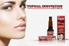 #Purodil  is a tropical innovative approach for the management of ‪#‎acne‬ & ‪#‎pimples‬.   #SkinCare   #HealthySkin