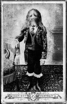 Lionel the Lion-faced boy as a child.  He was a snappy dresser even as a boy.