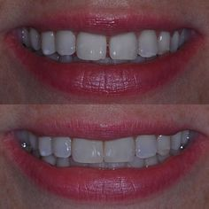 """Closing the space using composite resin on 2 teeth. The patient said she """"no longer wishes to look like Madonna""""! #foothillranch#lakeforest#hollywoodsmile#ochousewives#irvine#ocdentist#cosmeticdentistry#dentalimplantsorangecounty#braces#invisalign#invisalignorangecounty#teethbleaching#toothwhitening#bleaching#zoom#smilemakeover#porcelainveneers#ariairvanidds#magd#smile#veneers#crowns#hcsm#cosmetic#kordeepbleaching by ariairvani Our Dental Veneers Page…"""