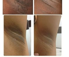 How to Get Rid of Dark Spots Under the Arms