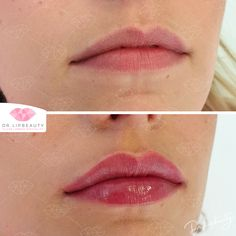 Makeup Inspo, Beauty Makeup, Hair Beauty, Lip Tatto, Celebrity Plastic Surgery, Lip Shapes, Oval Faces, Lip Fillers, Stay Young