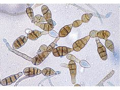 Alternaria is a fungal infection of the skin that affect dogs with a weak immune system.