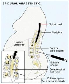 Epidural anaesthetic