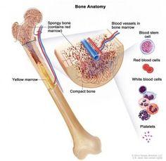 Acute lymphocytic leukemia symptoms