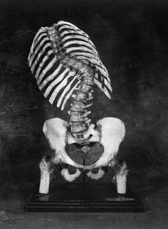 Severe Scoliosis - Curvature of the Spine.    My mother had polio when she was 16.  At first it appeared that nothing happened to her as a result of the disease, but by the time she died, 74 years later, the scoliosis had changed her body drastically with severe scoliosis.