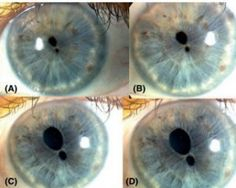 These are REAL images: true polycoria - two pupils in one iris. The fakes show two irises in one eye in an attempt to show two pupils in one eye.