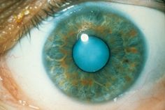 A possible cure for cataracts? Human testing within the next two years. 2015 (I want to volunteer to be tested on.) Eye drops made from