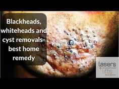 Blackheads, whiteheads and cyst removal- best home remedies - YouTube