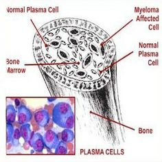 Multiple myeloma is a kind of cancer that affects the plasma cells. Abnormal plasma cells grow and accumulate in the bone marrow where they disrupt the I Hate Cancer, Stupid Cancer, Herbal Cure, Herbal Remedies, Health Remedies, Medical Symptoms, Multiple Myeloma, Nursing Tips, Home Remedies
