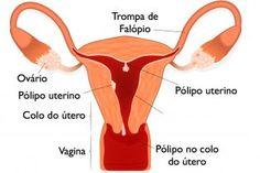 O que pode causar o Pólipo uterino