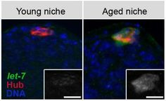 "Researchers at the Salk Institute for Biological Studies have uncovered a series of biological events that implicate stem cells' ""niche"" (surroundings) as the culprit in loss of stem cells due to aging. Their findings have implications for treatment of age-related diseases and for the effectiveness of regenerative medicine."