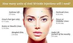 Image result for botox injection sites diagram Check more at http://www.yourfacebeauty.info/image-result-for-botox-injection-sites-diagram/