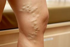 Varicose veins are dilated, tortuous veins in the legs caused by a failure of valves in the veins. They tend to run in families and are often made worse by prolonged periods of standing or multiple pregnancies.