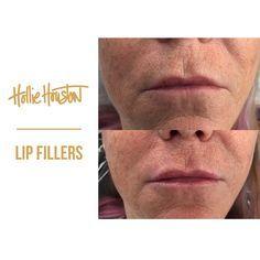 69616c861d16472038205be0d50f58a7 - How To Get Swelling To Go Down On Lip