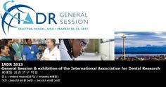 IADR 2013 General Session & exhibition of the International Association for Dental Research  씨애틀 치과 연구 학회