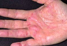 Natural Remedies for Psoriasis.What is Psoriasis? Causes and Some Natural Remedies For Psoriasis.Natural Remedies for Psoriasis - All You Need to Know Rash On Hands, Eczema On Hands, Get Rid Of Eczema, Cancer Sign, Cancer Cure, Fighting Cancer, Different Types Of Cancer, Types Of Cancers, Cancer Types