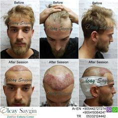 Best Hair Transplant Doctor in Turkey - Hair Style Hair Transplant Results, Hair Transplant Surgery, Best Hair Transplant, Good Doctor, Doctor In, Hair Restoration, Hair Loss Treatment, Hair Trends, Clinic