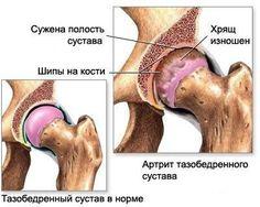 Хочу дать несколько советов по устранению артрита.   народные методы лечения   Постила
