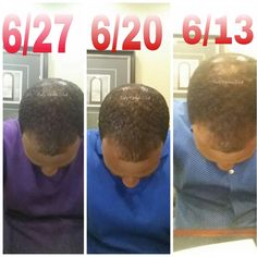 Two Weeks Of Using The Beaucoup Hair Herbal Hair System Hair System Grow Long Hair Herbal Hair