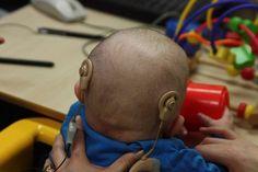 Una nena de 11 meses recibió un doble implante coclear y es el primero que se hace a tan temprana edad