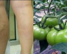 Guaranteed Treatment Of Varicose Veins - You Will Notice the Results Immediately! This recipe is very easy but is very effective for the treatment of varicose veins and you will notice the results immediately! Varicose Vein Remedy, Varicose Veins, Home Treatment, Russian Recipes, Natural Home Remedies, Natural Treatments, Herbal Medicine, Natural Medicine, Healthy Tips
