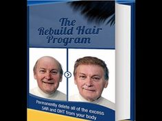 Hair Loss Protocol Review – The Best Hair Loss Treatment For 2015