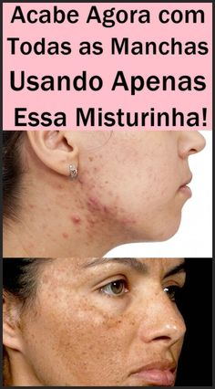 tirar manchas do rosto Health And Beauty, Remover, Shopping Mall, Fitness, Dark Patches On Face, Wax For Hair Removal, Face Creams, Ingrown Toenail Remedies, Homemade Hand Creams