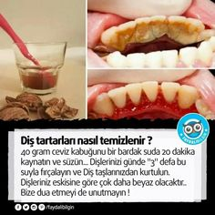 How to get rid of Tartar with one simple ingredient Health Tips, Health And Wellness, Health Fitness, Healthy Beauty, Health And Beauty, Alternative Health, Hot Dog Buns, How To Stay Healthy, Natural Health