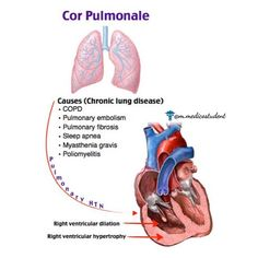 Pulmonary HTN + RVH → right heart failure MC chronic cause: COPD MC acute cause: PE Dx: Right heart catheterization Cardiac Nursing, Nursing Mnemonics, Nursing Math, Respiratory Therapy, Respiratory System, Circulatory System, Pulmonary Fibrosis, Pulmonary Hypertension, Critical Care Nursing