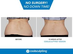 The CoolSculpting procedure allows you to eliminate unwanted fat without invasive surgery and long recovery times.  Rules of Engagement: https://www.facebook.com/CoolSculpting?sk=app_190322544333196&app_data=visitor_mode