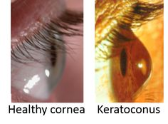 Keratoconus is a non-inflammatory ectasia or protrusion of the cornea. It is characterized by progressive thinning and steepening of the central cornea. keratoconus is genetic in origin and Keratoconus advances, rigid gas permeable lenses are the first choice to correct vision adequately.