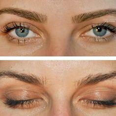 #eyebrowsshape #eyebrowscorrection #eyebrowsgrooming #eyebrowsdying #eyebrowstinted #dadamakeupsteps #dadamakeupartist #makeupsteps_com #makeupsteps #beforeandaftereyebrows #makeupstepseyebrows #mseyebrows