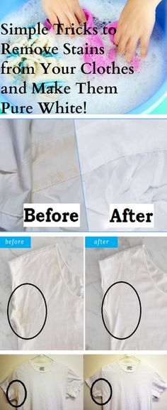 Simple Tricks to Remove Stains from Your Clothes and Make Them Pure White! – Stay Healthy Magazine