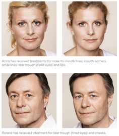 rejuvenecimiento-facial2.jpg (551×629)