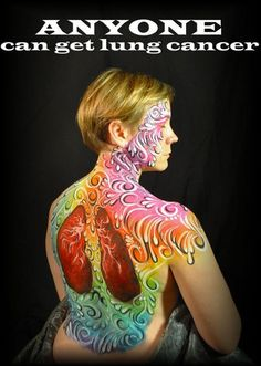 ANYONE can get lung cancer body art project.
