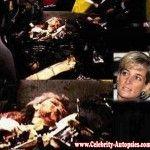 Autopsy Of Photo Princess Lady Diana | ... princess diana princess diana autopsy autopsy of princess diana photos