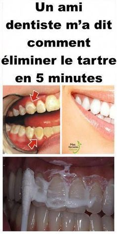 Sincere Dentist Crafts For Preschool Cas, Dental Implant Surgery, Emergency Dentist, Gifts For Dentist, Teeth Care, Teeth Whitening, Dentistry, Home Remedies, How To Get