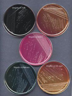 Shigella diagnosis