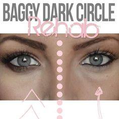 Dark circles shmark circles.
