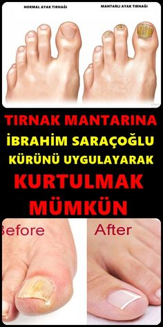 Tırnak Mantarı İçin Saraçoğlu Kürü Toenail fungus is a common condition that begins as a white and yellow spot under the tip of your nail or nail. Nail Treatment, Nail Fungus, Body Makeup, Cute Acrylic Nails, Reflexology, Health Advice, Homemade Beauty, Natural Treatments, Top