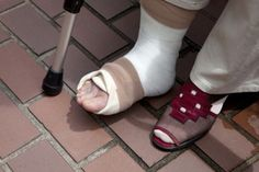 What to Expect as Your Broken Foot Heals