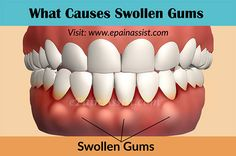 What Causes Swollen Gums & Home Remedies to Get Rid of it! #swollengums…
