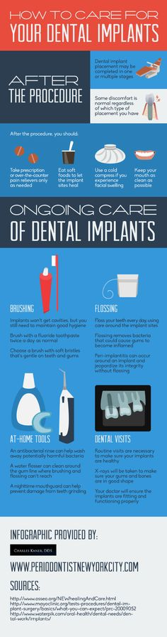 Dental implant placement can be completed in one or multiple stages. Patients normally experience some discomfort, regardless of which type of placement they have. Take a look at this NYC periodontist infographic for more dental implant facts!