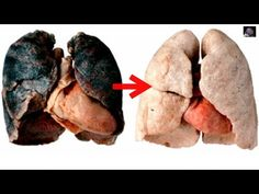 Quit Smoking Smoking Kills Watch Effects Of Smoking Cigarettes Side Effects Lung Cancer Commercial Organic Meat, Eating Organic, Smoking Side Effects, Quit Smoking Motivation, High Antioxidant Foods, Pineapple Health Benefits, Giving Up Smoking, Smoking Kills, Natural Home Remedies