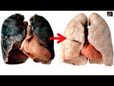 3 일간으로 흡연자의 검은 폐를 희게하는 방법!(Ranking World) - YouTube