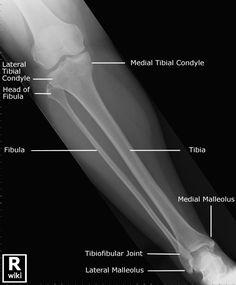 Radiographic Anatomy - Tib/Fib AP