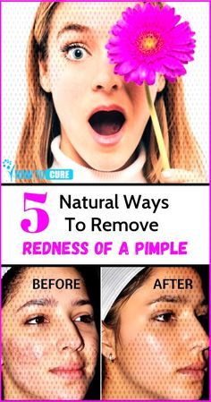 10 Ways to Get Rid of a Pimple Overnight 10 Ways to Get Rid of a Pimple Overnight read more .You can find Reduce. Reduce Pimple Redness, Pimples Overnight, Rid, The Cure, How To Remove