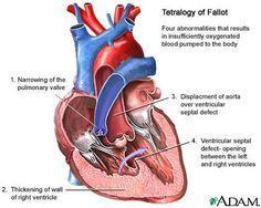 Tetralogy of Fallot Murmur | Tetralogy Of Fallot – Symptoms, Diagnosis and Treatment