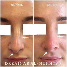 Facial Fillers, Dermal Fillers, Organic Makeup, Organic Skin Care, Advanced Aesthetics, Hyaluronic Acid Fillers, Perfect Nose, Numbing Cream, Smile Makeover